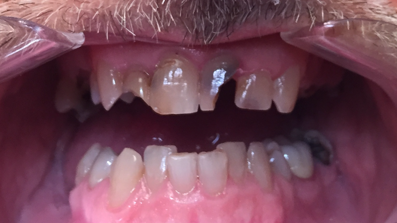 Patient dental picture before receiving All on 4 dental implant prosthesis at dentist office in , .