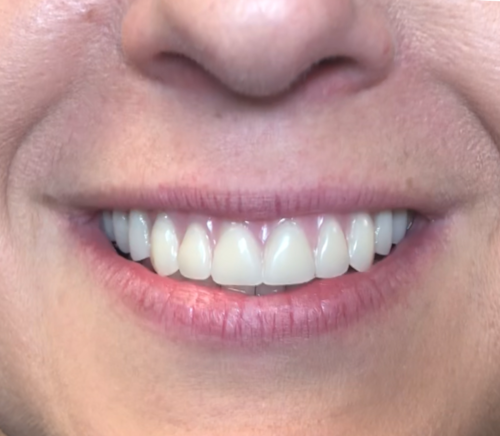 Before of all on 4 dental implants, from dentist office in Schererville, IN