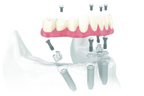 Diagram of all on 4 dental implants, from dentist office in Schererville, IN.