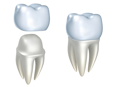 Can You Help a Dental Crown Last Longer?