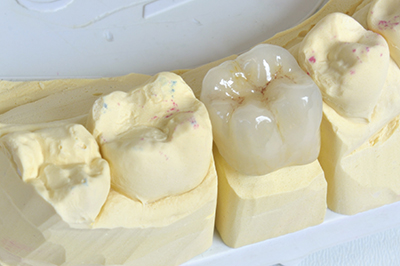 Close up of a lab created dental crown, as used by dentist in Schererville, IN.