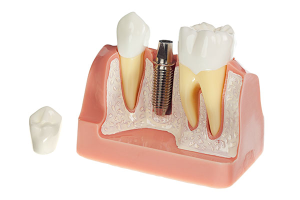 Model of a <a  class='TParticle'  href='/p/dentist-Schererville-IN-Dental-Implants-p35477.asp'  title='Dental Implants Crossroads Family Dental Schererville, IN dentist Schererville IN'  >Dental Implant</a> and crown at dentist office in Schererville, IN.
