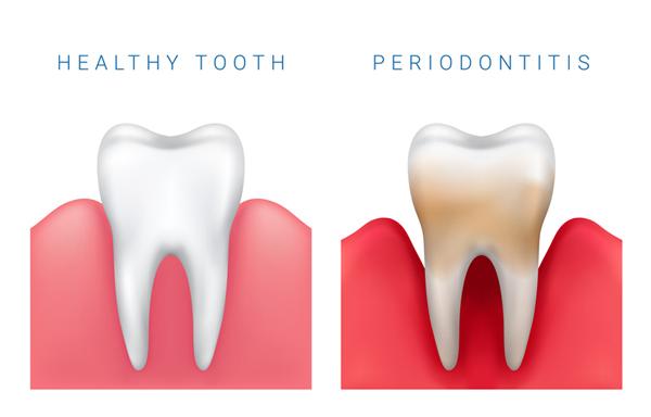 What Is a Periodontal Stabilization Splint and When Do You Need Them?